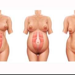 Cirugía de Abdomen. ¿Qué es la abdominoplastia?