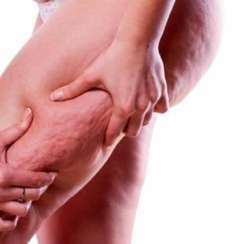 Qué es la Celulitis y cuáles son sus causas