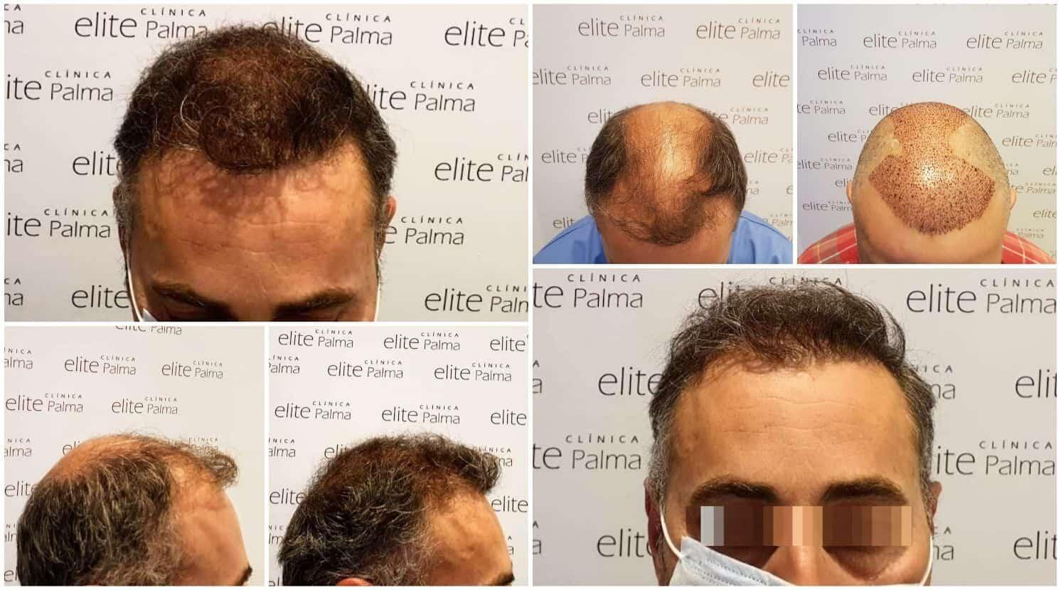 Resultados-Trasplante-Capilar-Mayo-2020-Clinica-Elite-Palma