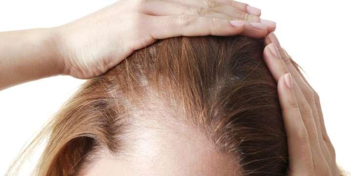 alopecia-femenina-web-Elite-Palma
