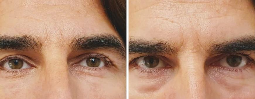 antes y después de eliminación de ojeras