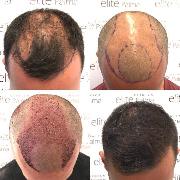 evolucion-paciente-6-meses-Clinica-Elite-Palma