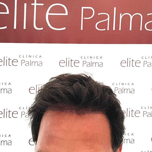 paciente-despues-cirugia-Elite-Palma