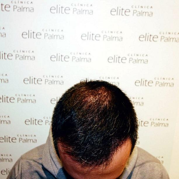 evolucion-paciente-trasplante-capilar-Elite-Palma
