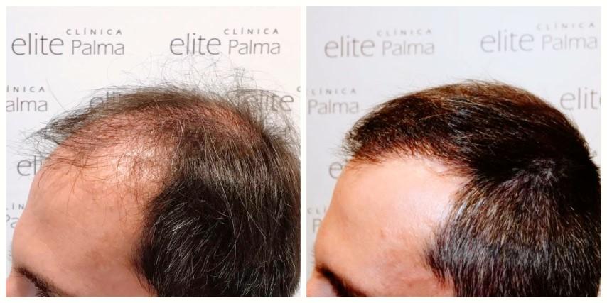 Trasplante capilar FUE antes y después de 8 meses