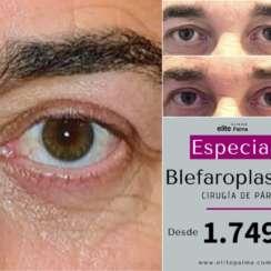 Especial Blefaroplastia
