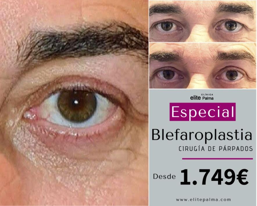 Campaña-Blefaroplastia-Febrero-en-Mallorca-Elite-Palma-2020